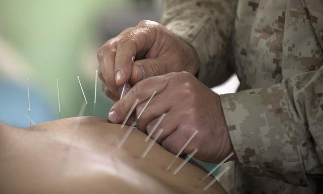 Een Amerikaanse commandant behandelt een patiënt met acupunctuur aan boord van het transportschip USS New Orleans (LPD 18). Foto door U.S. Navy